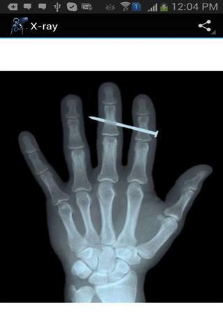 X射线搞怪壁纸