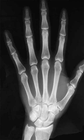 x射线扫描仪