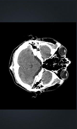 X射线3D红外线透视