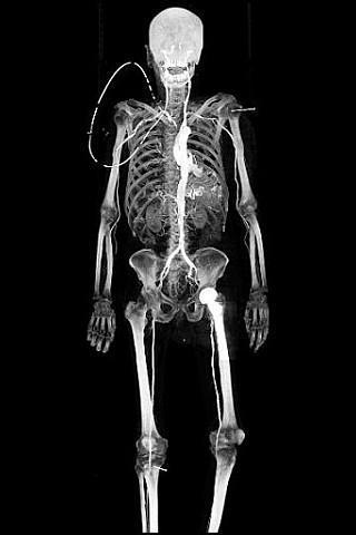 X射线下3D效果动态壁纸